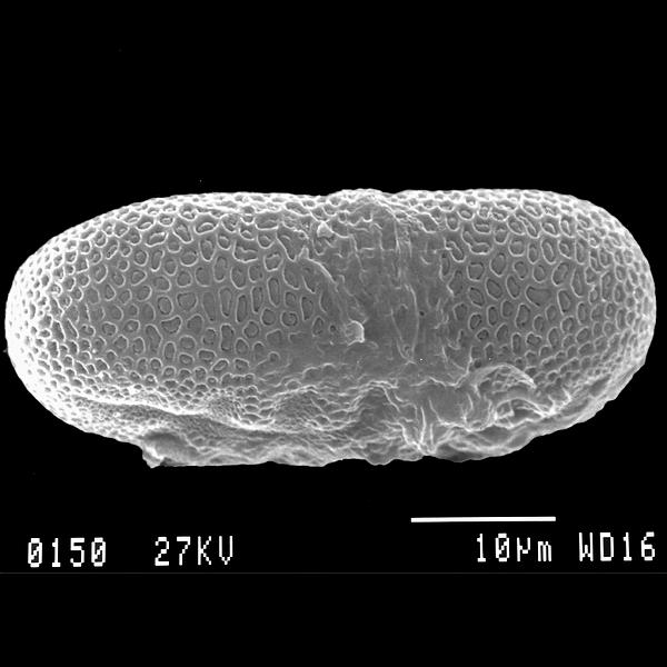 Pollen grain of Justicia galapagana Lindau (scanning electron micrograph). Photo: Patricia Jaramillo Díaz & M. Mar Trigo, CDF, 2011.